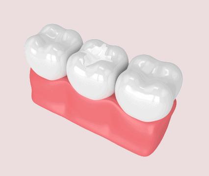 Dental Sealant | Keene New Hampshire